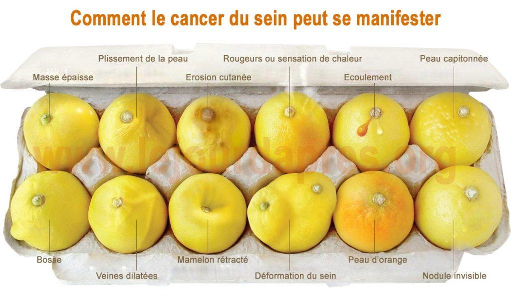 Repérer le cancer du sein grâce d'un coup d'œil grâce à ces citrons